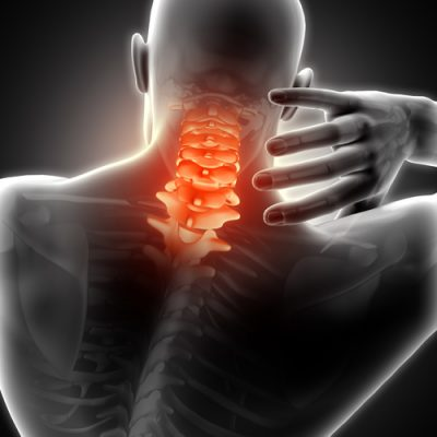 3D render of a medical image showing a male with neck pain